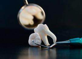 Удаление зубов в Нижнем Новгороде