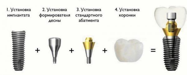 Имплантация под ключ